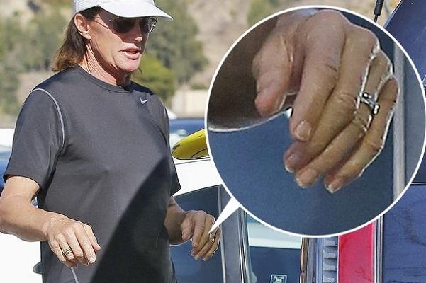 Bruce Jenner Goes Under the Knife Again To 'Look More Feminine'