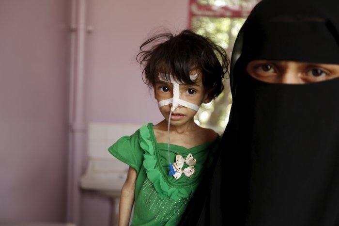 Yemen Saudi Arabia War